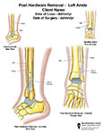 Foot / Toes - Case Study 1